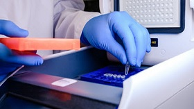 GettyImages-PCR analysis